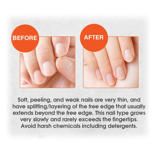 Nail-Tek-Nail-Tek-Intensive-Therapy Before and after